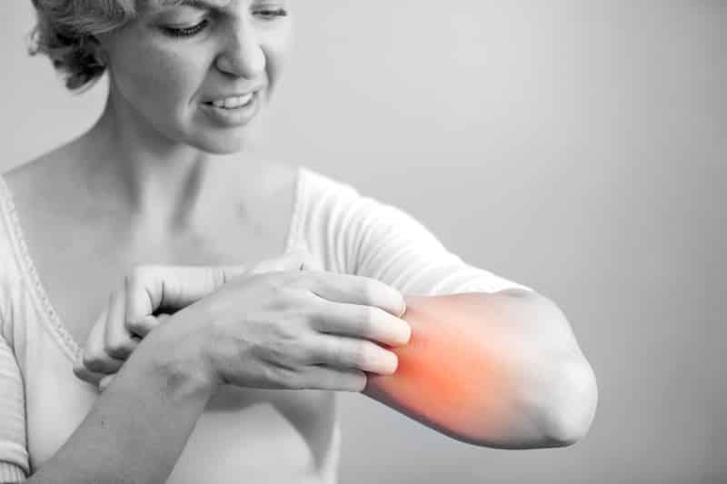 Conquering Eczema